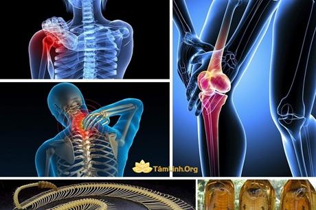 Rắn độc: Khắc tinh của bệnh xương khớp